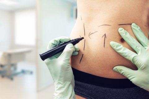 Tout savoir sur la chirurgie esthétique